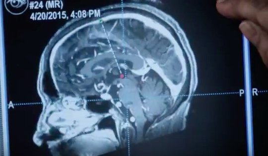 Brain Surgery Live 2